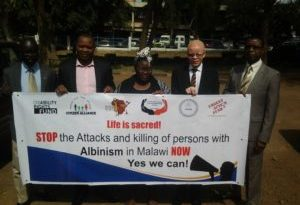 Stop advertising body parts of people with albinism