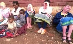 Albino Killings