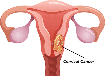 AI Approach Accurate Than Doctors at Detecting Cervical Cancer