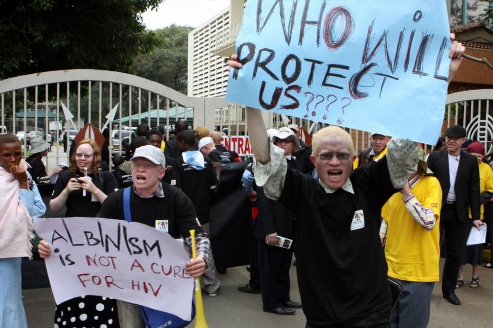 Albino Protest